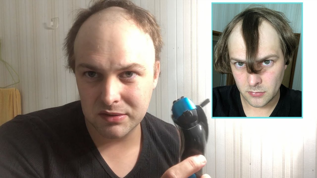 BALDING MAN Tired Of Receding Hairline Shaves Head Bald And Totally Transforms Look!