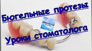 Что такое бюгельный протез. Протезирование.Ортопедическая стоматология(В этом видео мы вам расскажем как происходит протезирование бюгельным протезов с кламерной фиксацией...., 2015-06-14T15:49:21.000Z)