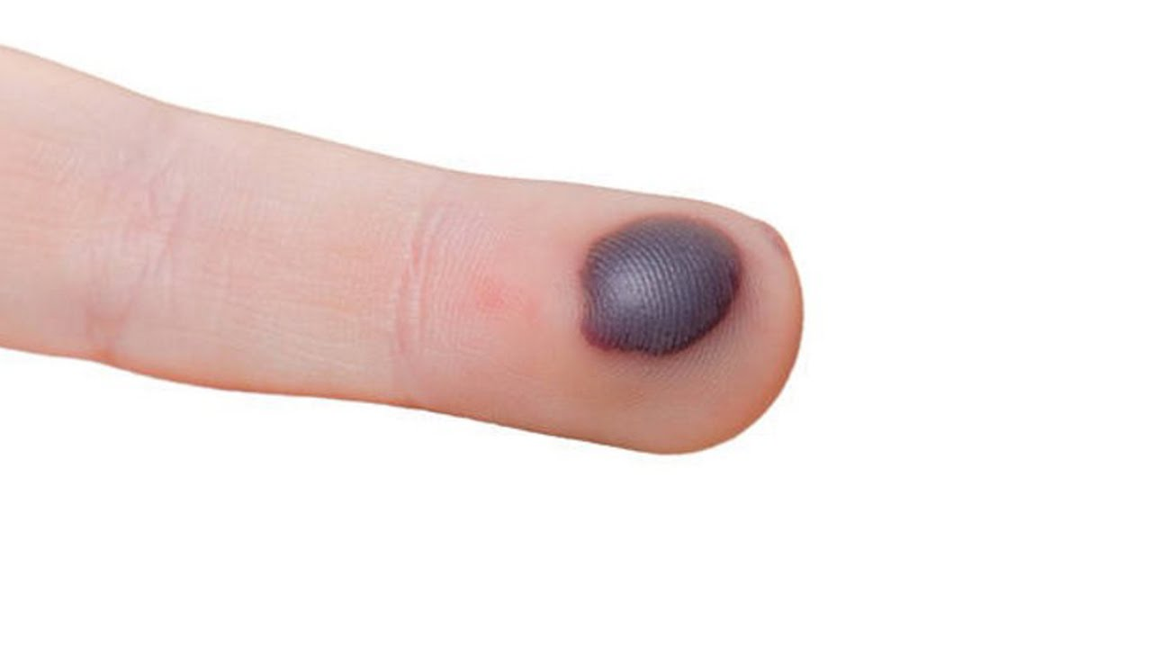 How to get Rid of Blood Blisters - YouTube