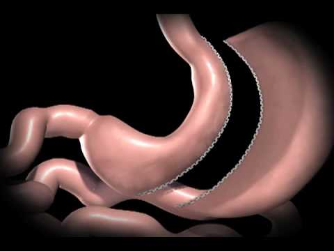 Sleeve Gastrectomy At Duke Center For Metabolic And Weight Loss Surgery
