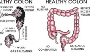 What is the difference between a colonic and an enema?