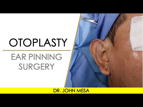 Otoplasty | Prominent Ear Surgery (Ear Pinning) by Dr. John Mesa New York Plastic Surgeon LIVE