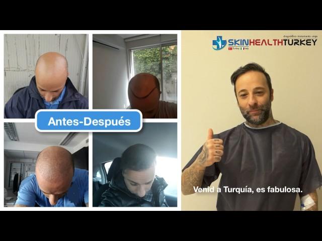 Trasplante Capilar Turquía - Antes / Después (2 sesión) - Dra. Oyku Celen / Skin Health Turkey