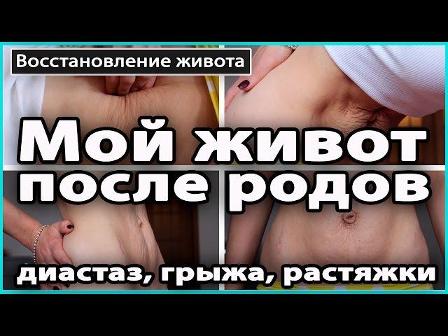 ‼️ МОЙ ЖИВОТ спустя год после родов | Диастаз, растяжки, пупочная грыжа 💜 LilyBoiko