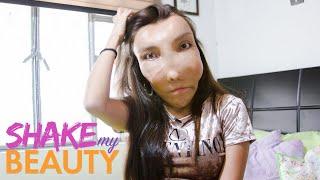I Won't Hide My Facial Deformity   SHAKE MY BEAUTY