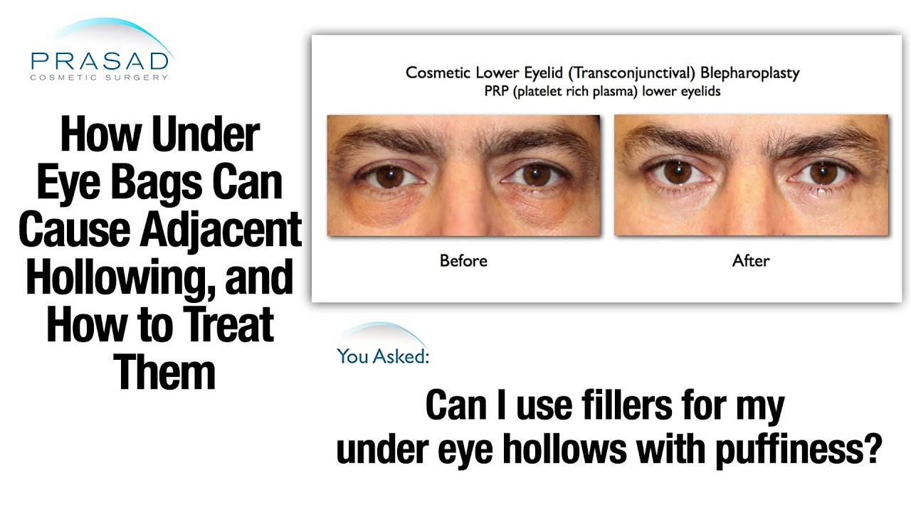 how to stop eye dilation acid