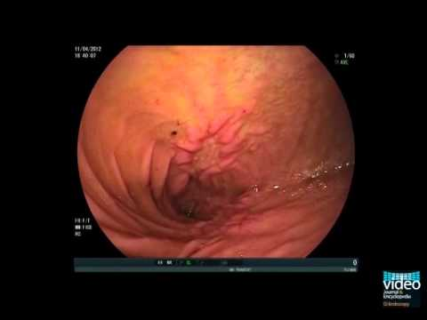 Obstructive Small Bowel Crohn\'s Disease in Balloon Enteroscopy - YouTube