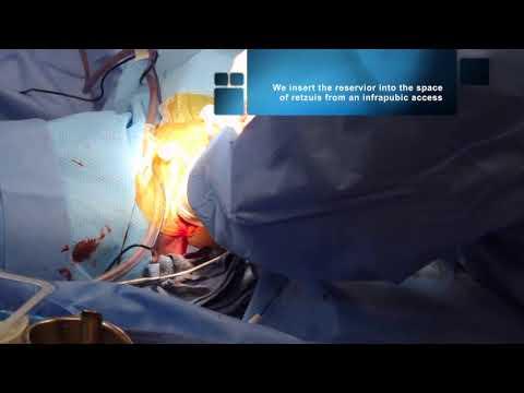 Phalloplasty surgery video