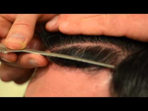 Dense Packed Megasession Hair Transplant - 1.800.859.2266