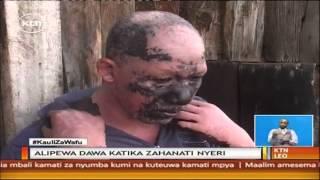 Mwanaume mmoja aathirika ngozi baada ya kumeza dawa