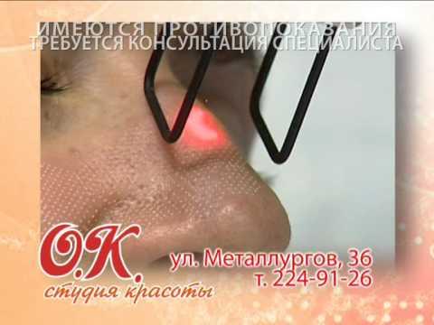 Лазерная шлифовка лица стоимость, лазерное омоложение