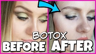 BOTOX GONE WRONG my story
