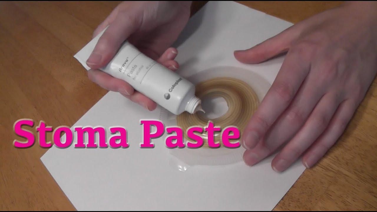 Ostomy Leak Prevention Stoma Paste Brava Review