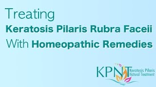 Treating Keratosis Pilaris Rubra Faceii With Homeopathic Remedies Video