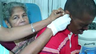 Ear Cleaning Is  Extremely difficult in A Child Iike this - Dr Paulose FRCS (ENT)
