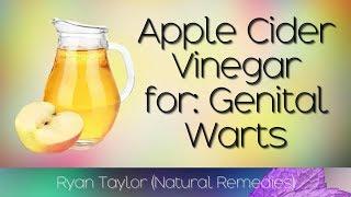 Apple Cider Vinegar: for Genital Warts