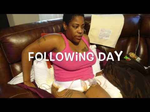 Day of tummy tuck surgery 3/18 2017| Done by plastic surgeon Dr. B