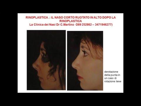 Eliminare la gobbetta sul naso senza bisturi - Rinoplastica non chirurgica from YouTube · Duration:  1 minutes 59 seconds