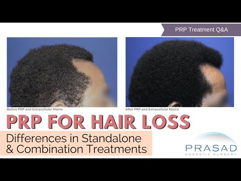 PRP Treatment for Hair Loss - Differences in Standalone and Combination Treatments