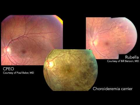 Infectious Posterior Uveitis