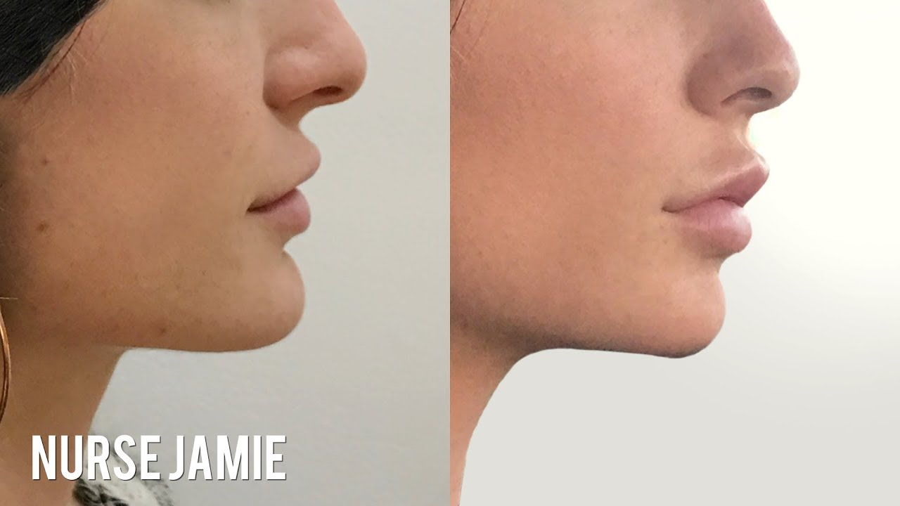 Before and After Non-Surgical Chin Augmentation | Nurse Jamie