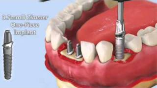 Zimmer One Piece Implant...