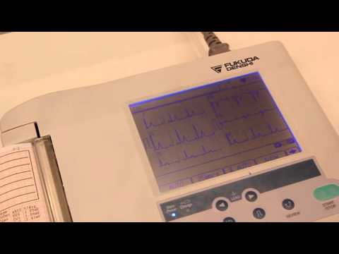 Электрокардиограф Fukuda Denshi Cardimax