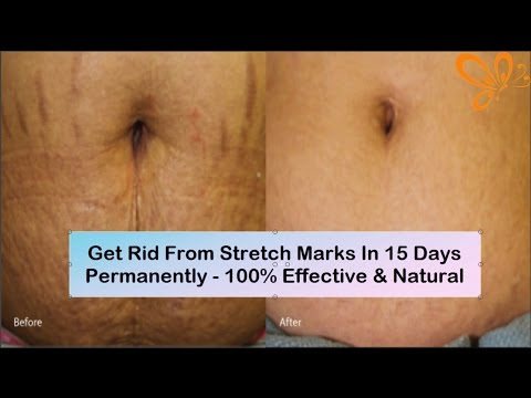 How To Get Rid From Stretch Marks In 15 days Permanently At Home | 100% Effective Save & Natural
