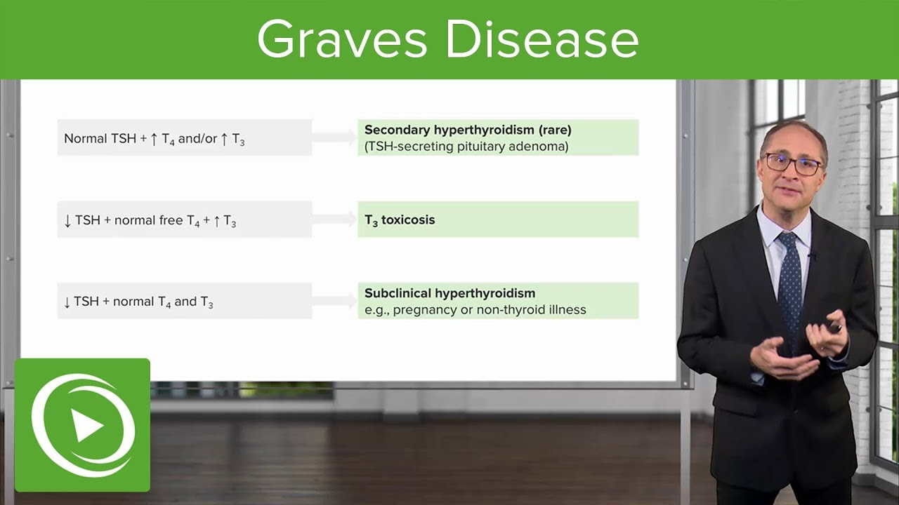 Graves Disease – Endocrinology | Lecturio