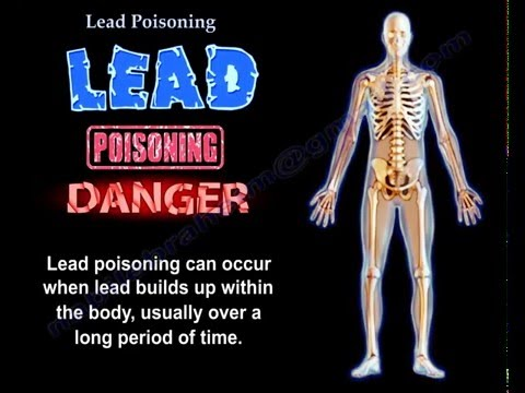 Lead Poisoning  - Everything You Need To Know - Dr. Nabil Ebraheim