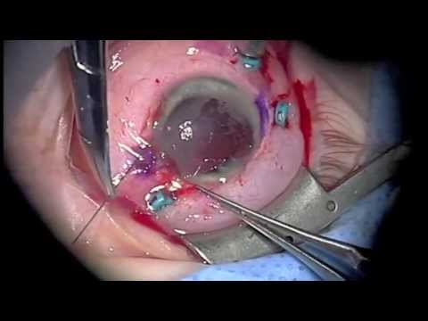 Retinal Detachment repair in ruptured globe - YouTube