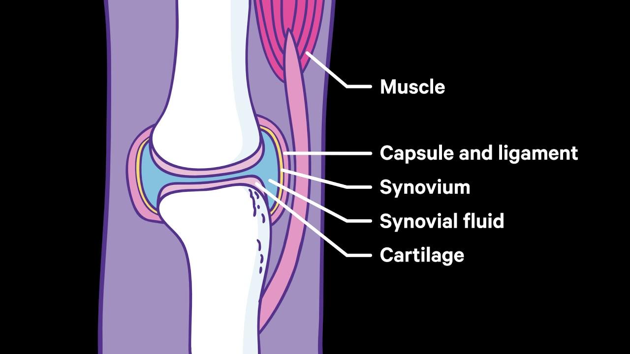 Rheumatoid Arthritis Causes Symptoms Treatments