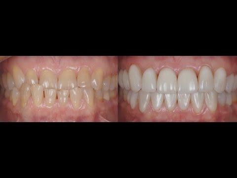 «Сонник Зубы приснились, к чему снятся во сне Зубы»