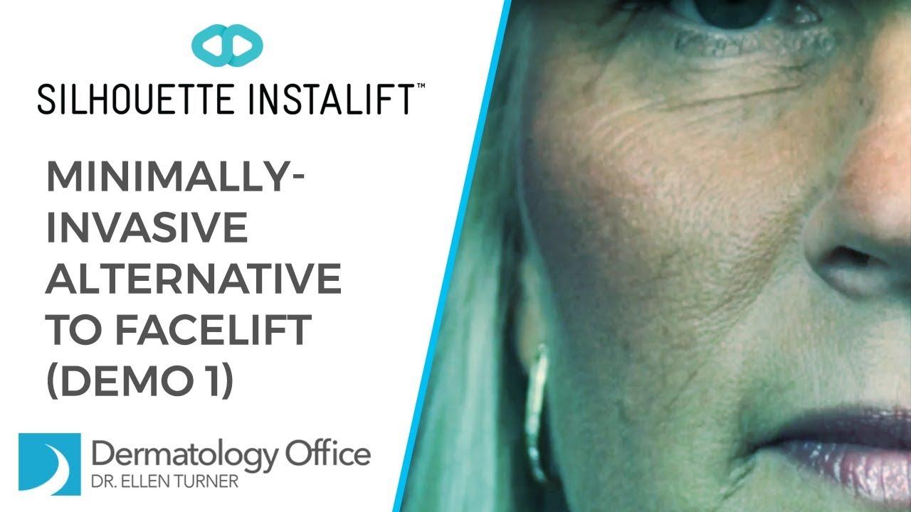 Silhouette InstaLift | Dallas, Irving | Dr  Ellen Turner