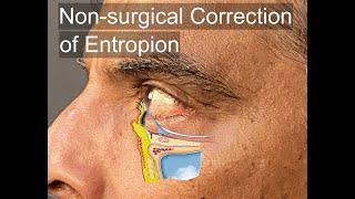 Entropion, Kondisi Kelopak Mata yang Terlipat ke Arah Dalam Sehingga Menyebabkan Infeksi pada Mata.