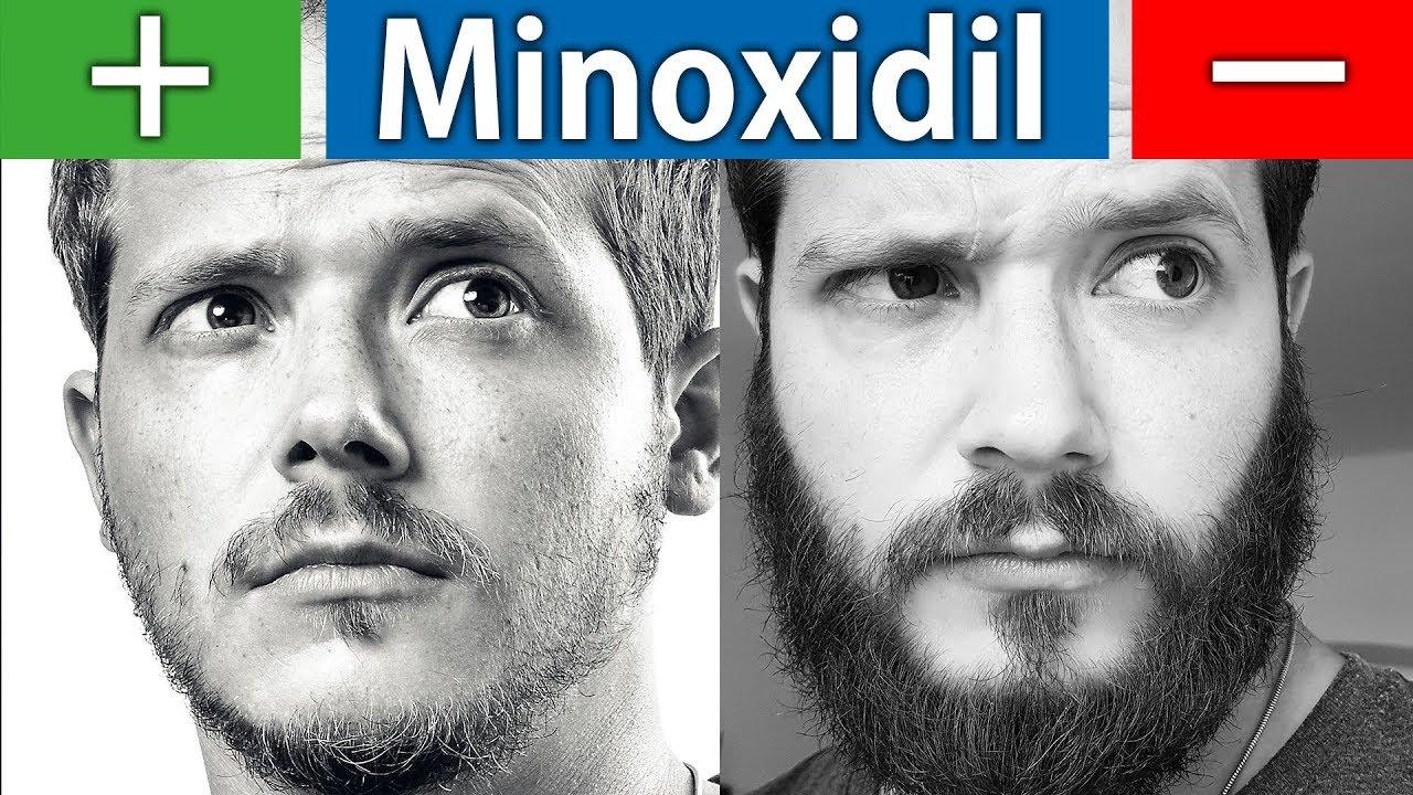 Minoxidil Nebenwirkungen