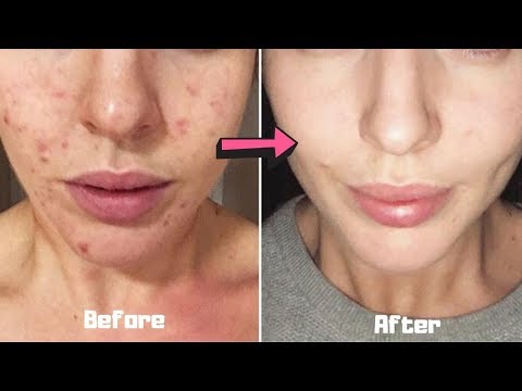 how-to-get-rid-of-acne-overnight-how-to-get-rid-of-spots-on-face