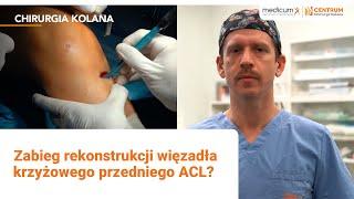 Jak wygląda zabieg rekonstrukcji więzadła krzyżowego przedniego ACL?   Centrum Medyczne Medicum