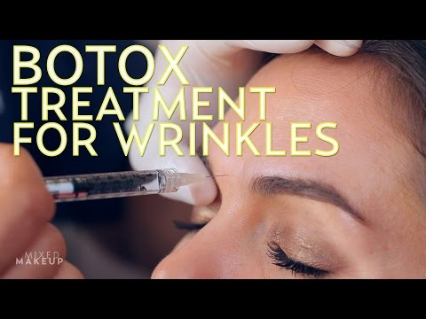 My First Botox Injections | The SASS with Sharzad and Susan