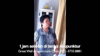 Cibubur Akupuntur Saraf Terjepit HNP-Aman dan Sembuh 021.3733.8881 www.akupunkturcibubur.com