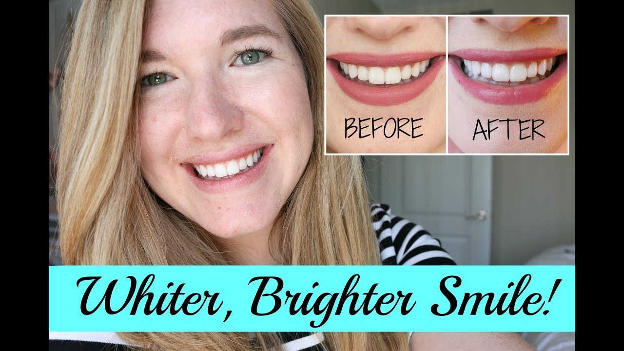how to get a whiter smile