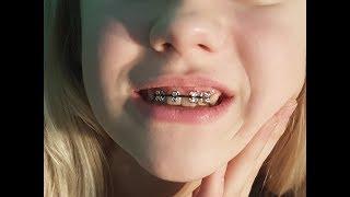 Aparat na zęby (sztuczny) Poradnik jak zrobić Braces