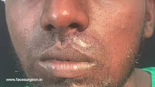 Moustache Transplantation over Scar - Camouflage Treatment