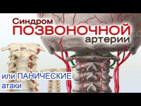 Синдром позвоночной артерии или паническая атака Лечение Харьков клинический пример Лечение Харьков