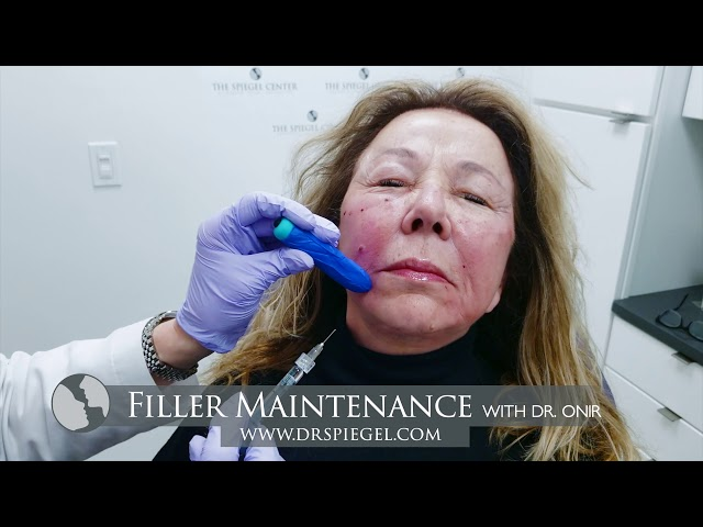 Filler Maintenance