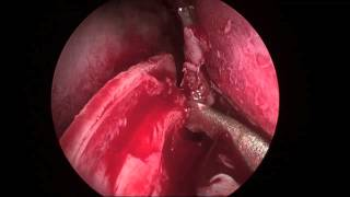 Endoscopic Septoplasty 2013 HD
