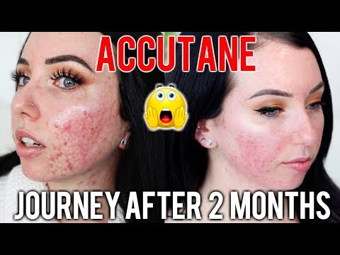 MY ACCUTANE JOURNEY 2 MONTH UPDATE Before & After, Side Effects, Skin Care Products I'm using!
