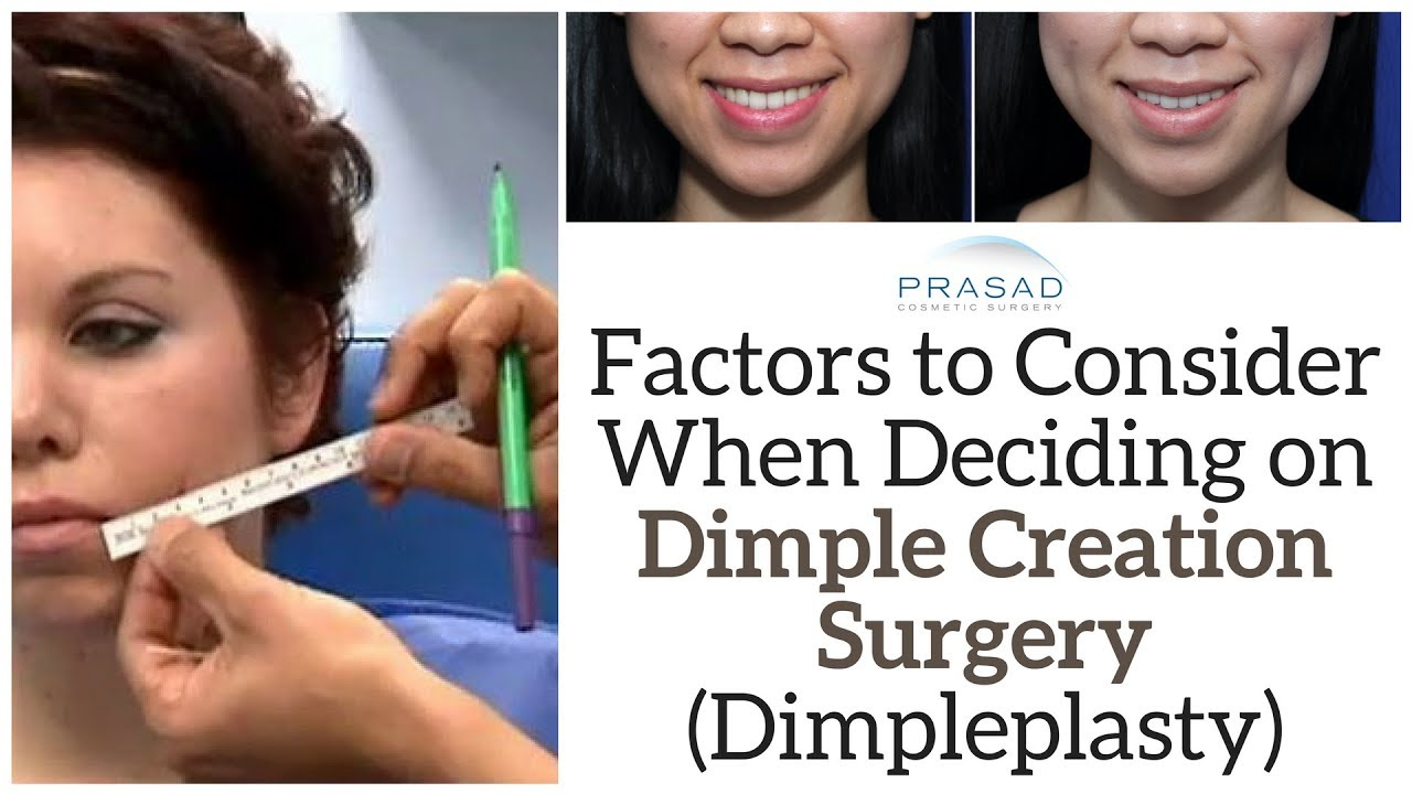 What to Consider Before Undergoing Dimple Creation Surgery