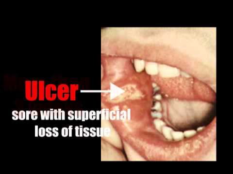 5 Possible Causes of Sore Throat and Tongue | New Health Advisor