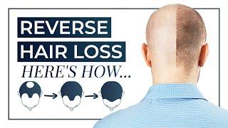 How To Reverse Hair Loss | Treatment, Shampoo, Medication